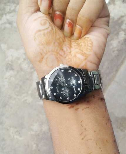 Girls Hand Watches - Soons  - ShareChat